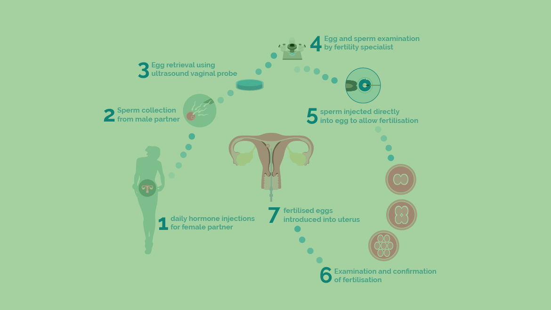 ICSI (Intra Cytoplasmic Sperm Injection)