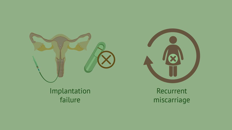 Recurrent Miscarriage investigations.